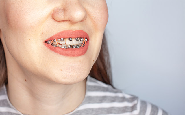 Aparat za zobe - zunanje zvezdice