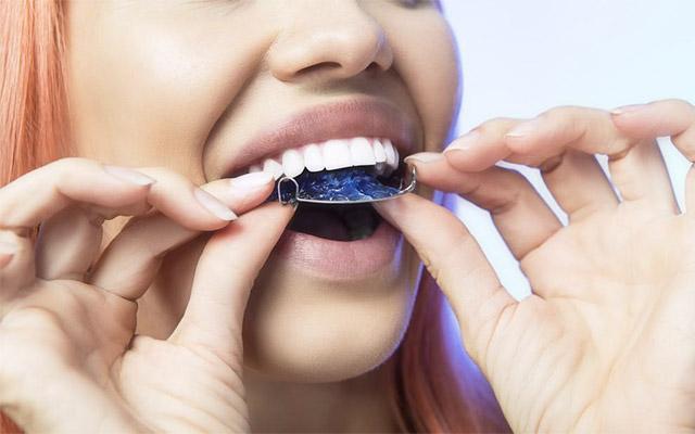 Snemni zobni aparat